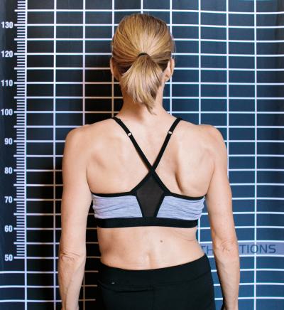 Der Rücken einer Frau mit Rückenfehlstellung
